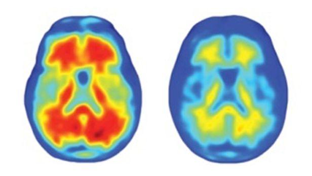 알츠하이머 치매 환자의 뇌 양전자 방출 단층촬영(PET) 영상. 노랗고 붉게 보이는 부분은 베타 아밀로이드이다(왼쪽). 치료제 투약 후 사라진 것을 알 수 있다./Nature